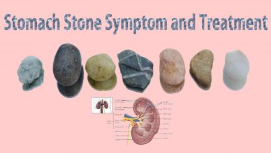 stomach stone symptom and treatment