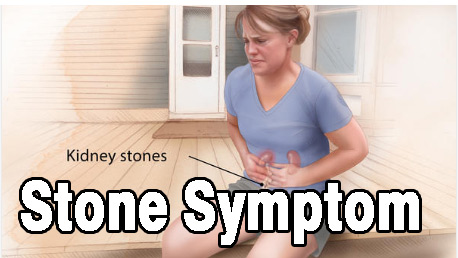 stone symptom