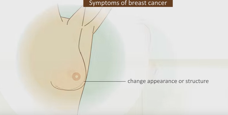 symptome breast of cancer
