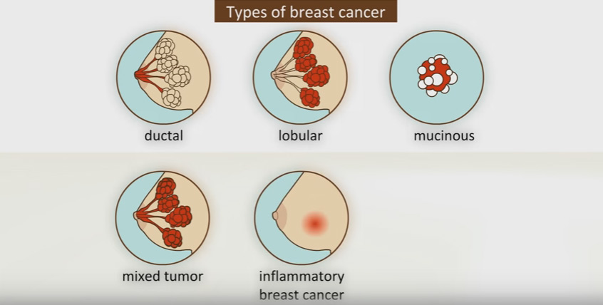 Type of breast cancer
