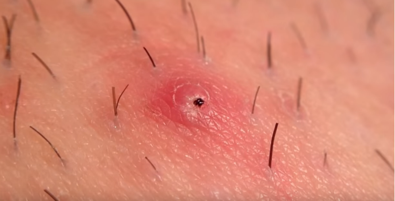 Ingrown Hair Removal Close-up