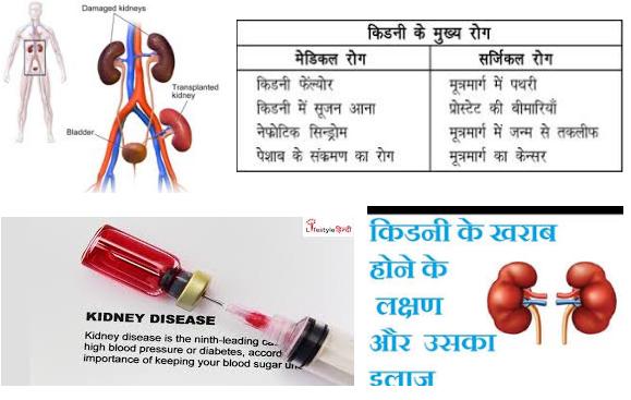 kidnee ka ilaj in hindi