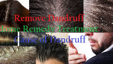 Remove Dandruff Home Remedy Treatment and Cause of Dandruff