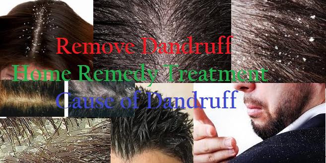 Remove Dandruff Home Remedy Treatment and Cause of Dandruff